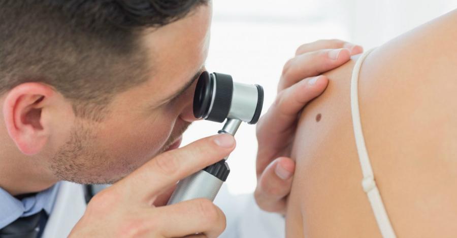 prichini vidi l kuvannya prof laktika utvoren na shk r nosa 1 - Причини види лікування і профілактика утворень на шкірі носа
