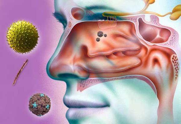 Причини закладеності носа без нежиті у дорослих