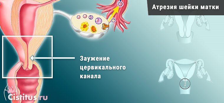 procedura buzhuvannya cerv kal nogo kanalu shiyki matki yak dlya chogo t provodyat 1 - Процедура бужування цервікального каналу шийки матки як і для чого ті проводять