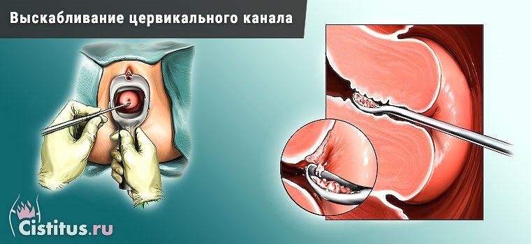 Процедура бужування цервікального каналу шийки матки як і для чого ті проводять