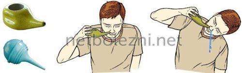Промивання носа сольовим розчином у домашніх умовах