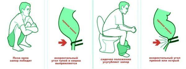 pronosne v domashn h umovah shvidkogo d 1 - Проносне в домашніх умовах швидкого дії