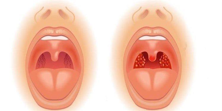 puhk migdalini simptomatika l kuvannya prof laktika 1 - Пухкі мигдалини симптоматика лікування і профілактика