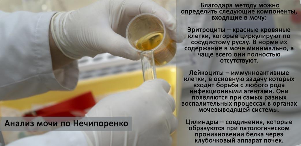 Рекомендації по збиранню і здачі сечі за методом Нечипоренко