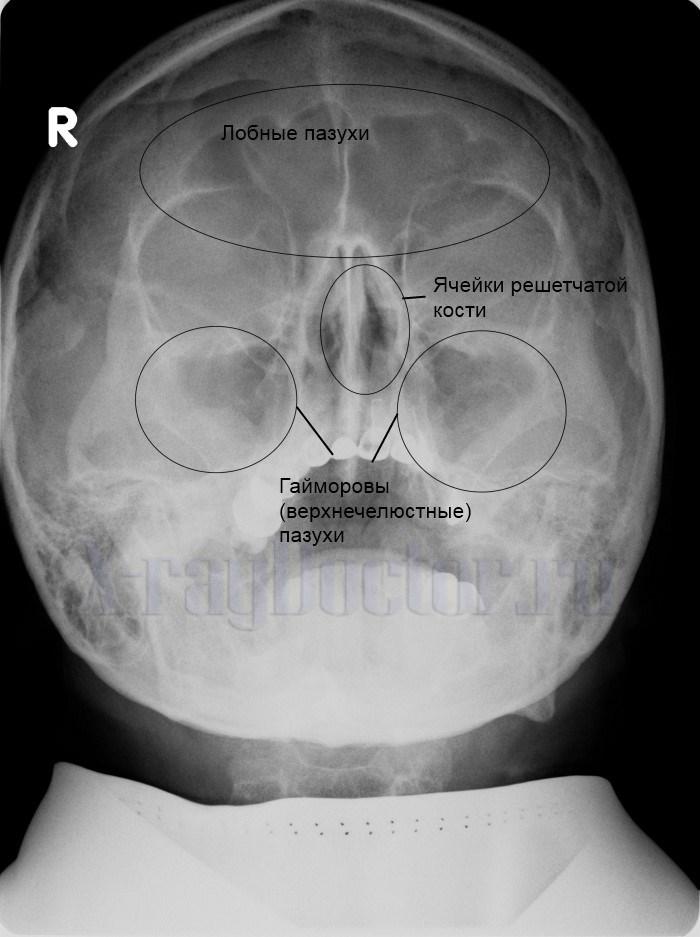 rentgen pazuh nosa yak roblyat yak rozshifruvati zn mok 1 - Рентген пазух носа: як роблять і як розшифрувати знімок