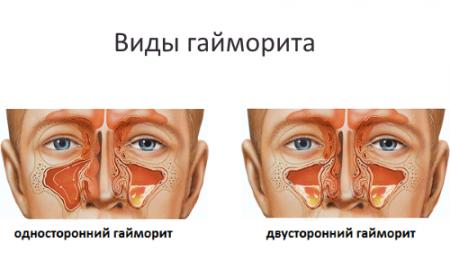 Що показує УЗД носових пазух