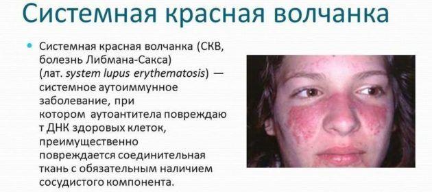 Що робити коли ніс почервонів або посинів