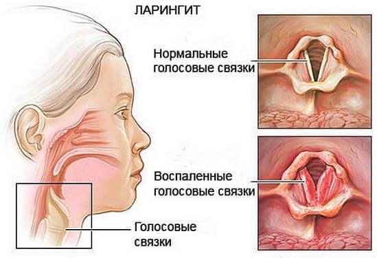 Що робити коли у дитини осип голос і кашель