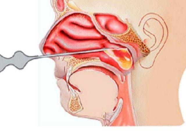 Що робити після проколу гайморових пазух – подальше лікування гаймориту