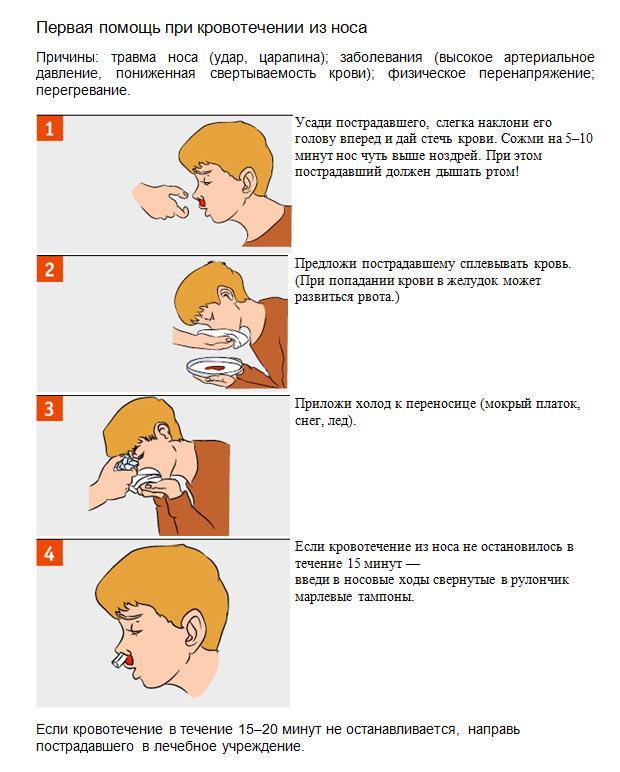 Що робити при кровотечі з носа