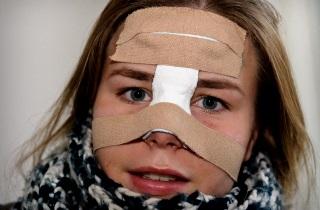 Що робити якщо часто йде кров з носа у підлітка