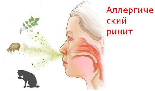 Що робити, якщо довгий час не проходить закладеність носа