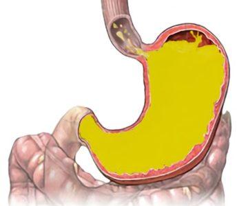 Що робити якщо ковтати боляче але горло не болить можливі причини та діагностика