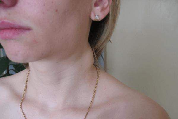 Що робити якщо опухли лімфовузли на шиї праворуч або ліворуч