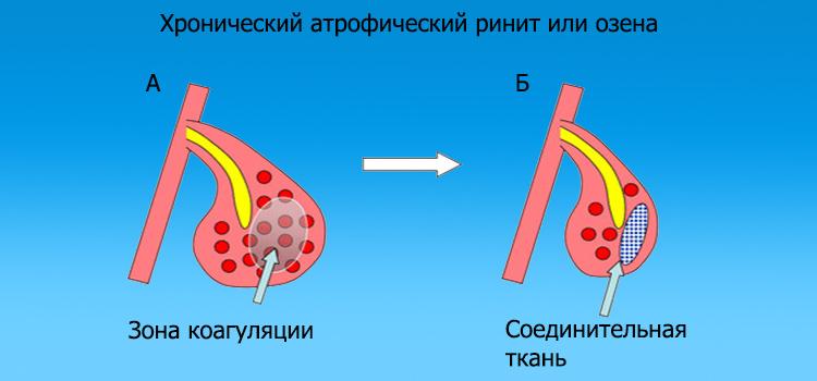Що робити, якщо постійно закладений ніс не дихає