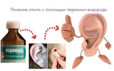 Що робити якщо продуло вухо? Як лікувати вухо якщо продуло