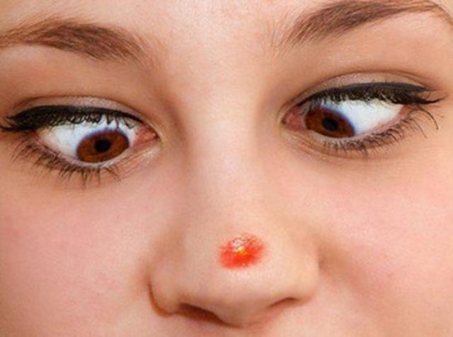 Що робити якщо скочив підшкірний прищ на носі і болить як лікувати