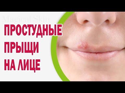 Що робити якщо у дитини закладений ніс і течуть соплі?