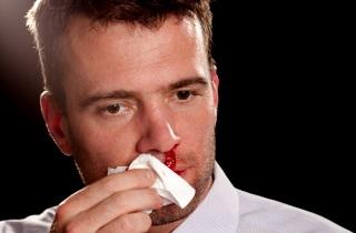 scho robiti yakscho z nosa yde krov kozhen den 1 - Що робити, якщо з носа йде кров кожен день