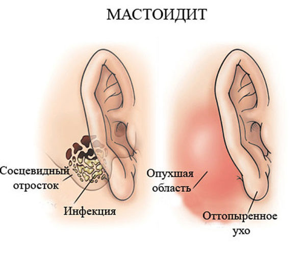 Що робити якщо за вухом у дитини почервоніло або воно опухло? Що робити, якщо у дитини почервоніння за вухом