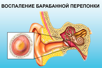 Що робити якщо заклало вуха від нежитю: причини і лікування