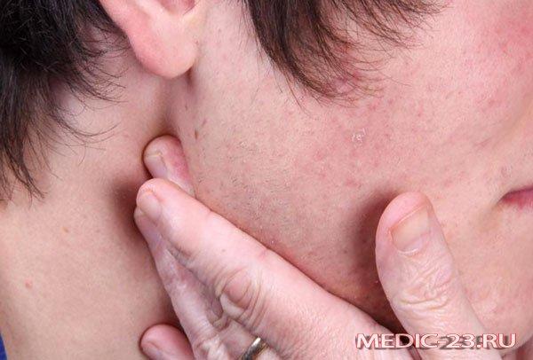 Що робити якщо запалився лімфовузол за вухом