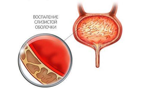 Що робити якщо застуджений сечовий міхур
