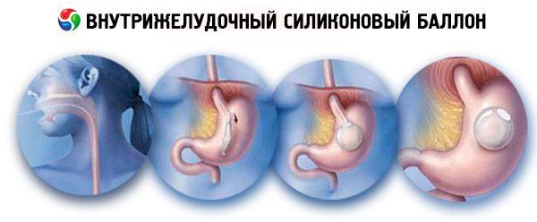 Що таке бандажування шлунка які наслідки