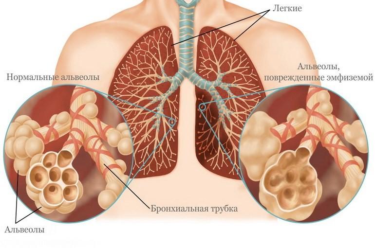 Що таке емфізема легенів і як вона лікується