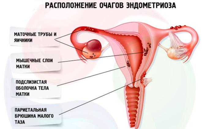 Що таке ендометріоз яєчника як він виявляється і чим його лікують