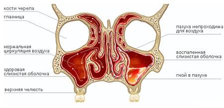 Що таке гайморит? Перші ознаки і чим лікувати захворювання