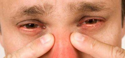 Що таке гаймороэтмоидит симптоми та лікування у дорослих і дітей
