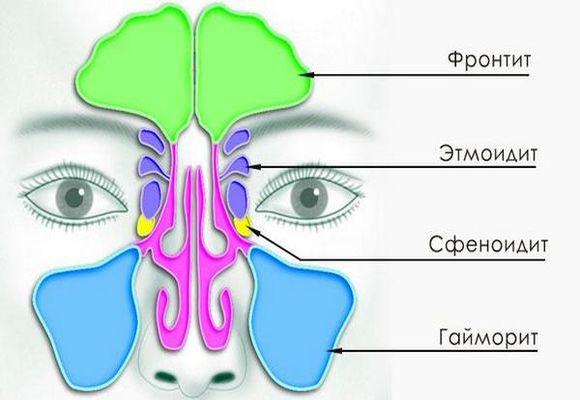 scho take gostriy frontit yogo simptomi l kuvannya 1 - Що таке гострий фронтит його симптоми і лікування