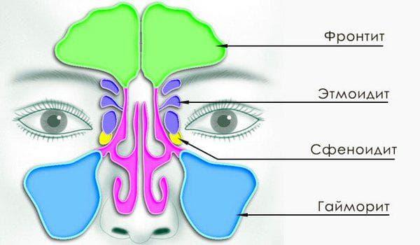 scho take hron chniy etmo dit simptomi l kuvannya 2019 1 - Що таке хронічний етмоїдит – симптоми і лікування 2019