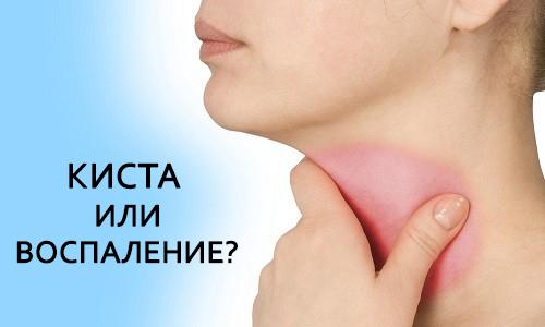 Що таке кіста в горлі – симптоми і лікування 2019