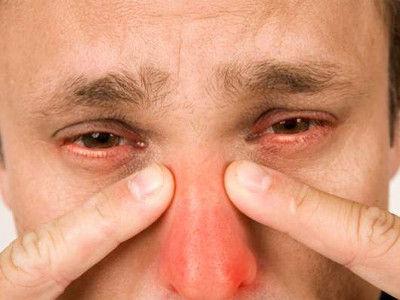 scho take kataral niy gaymorit simptomi ta l kuvannya u doroslih d tey 1 - Що таке катаральний гайморит симптоми та лікування у дорослих і дітей