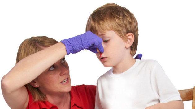 Що зробити щоб пішла кров з носа