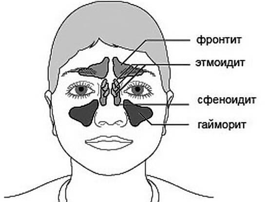 sfenoidit oznaki metodi l kuvannya 1 - Сфеноидит ознаки і методи лікування