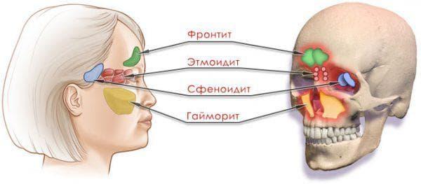 sfenoidit vidi oznaki 1 - Сфеноидит види ознаки
