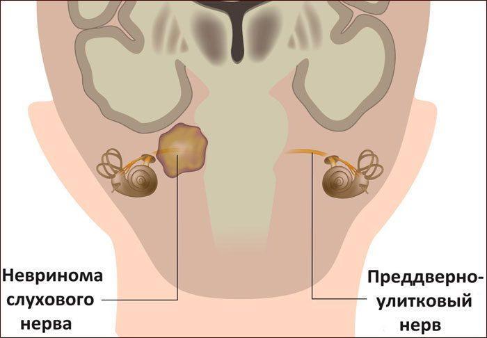 shum u l vomu vus prichini l kuvannya narodnimi zasobami 1 - Шум у лівому вусі причини і лікування народними засобами