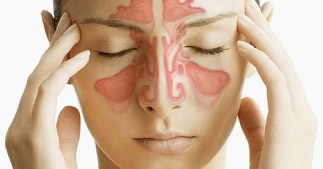 simptomi sinusitu u doroslih ta sposobi yogo l kuvannya 1 - Симптоми синуситу у дорослих та способи його лікування