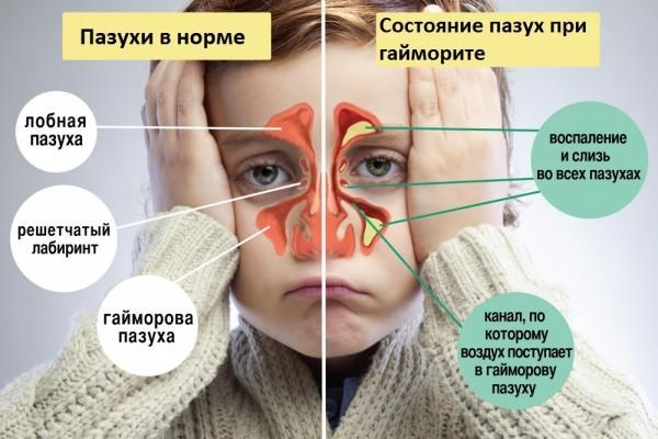 Симптоми та лікування гаймориту без нежиті