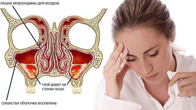 Симптоми та лікування гнійного гаймориту в домашніх умовах