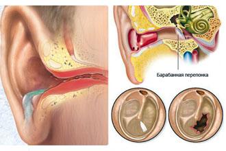 simptomi ta l kuvannya gn ynogo otitu u ditini doroslih mozhliv uskladnennya 1 - Симптоми та лікування гнійного отиту у дитини і дорослих можливі ускладнення