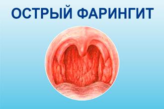 simptomi ta l kuvannya gostrogo faring tu u doroslih 1 - Симптоми та лікування гострого фарингіту у дорослих