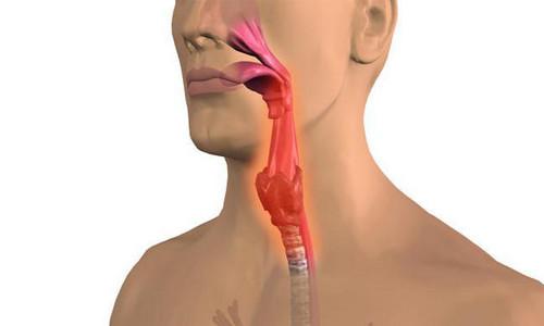 simptomi ta l kuvannya granul oznogo faring tu 1 - Симптоми та лікування гранульозного фарингіту
