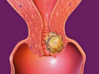 Симптоми та лікування папіломатозу гортані