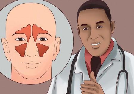 simptomi ta l kuvannya polipoznogo gaymoritu 1 - Симптоми та лікування полипозного гаймориту