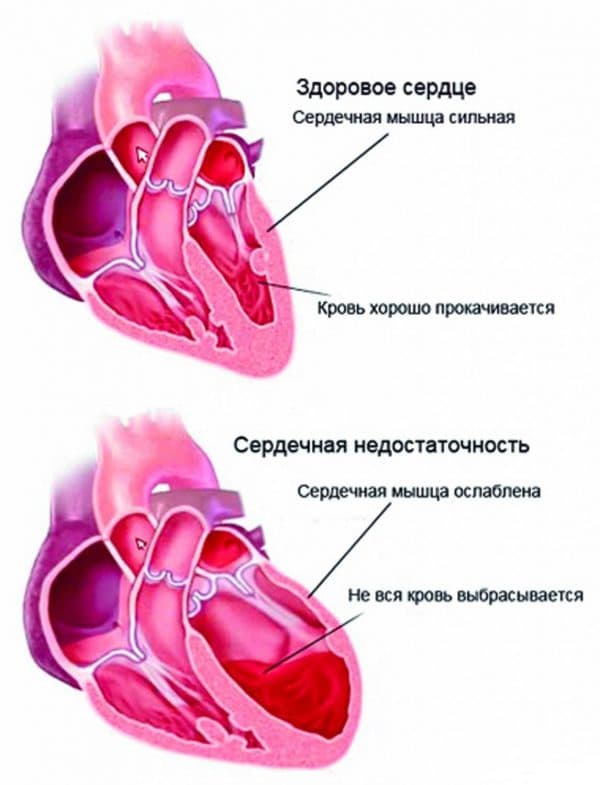 simptomi ta l kuvannya sercevogo kashlyu narodnimi zasobami budinku 2019 1 - Симптоми та лікування серцевого кашлю народними засобами будинку 2019