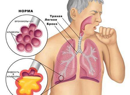 simptomi ta l kuvannya zapalennya legen v 2 - Симптоми та лікування запалення легенів